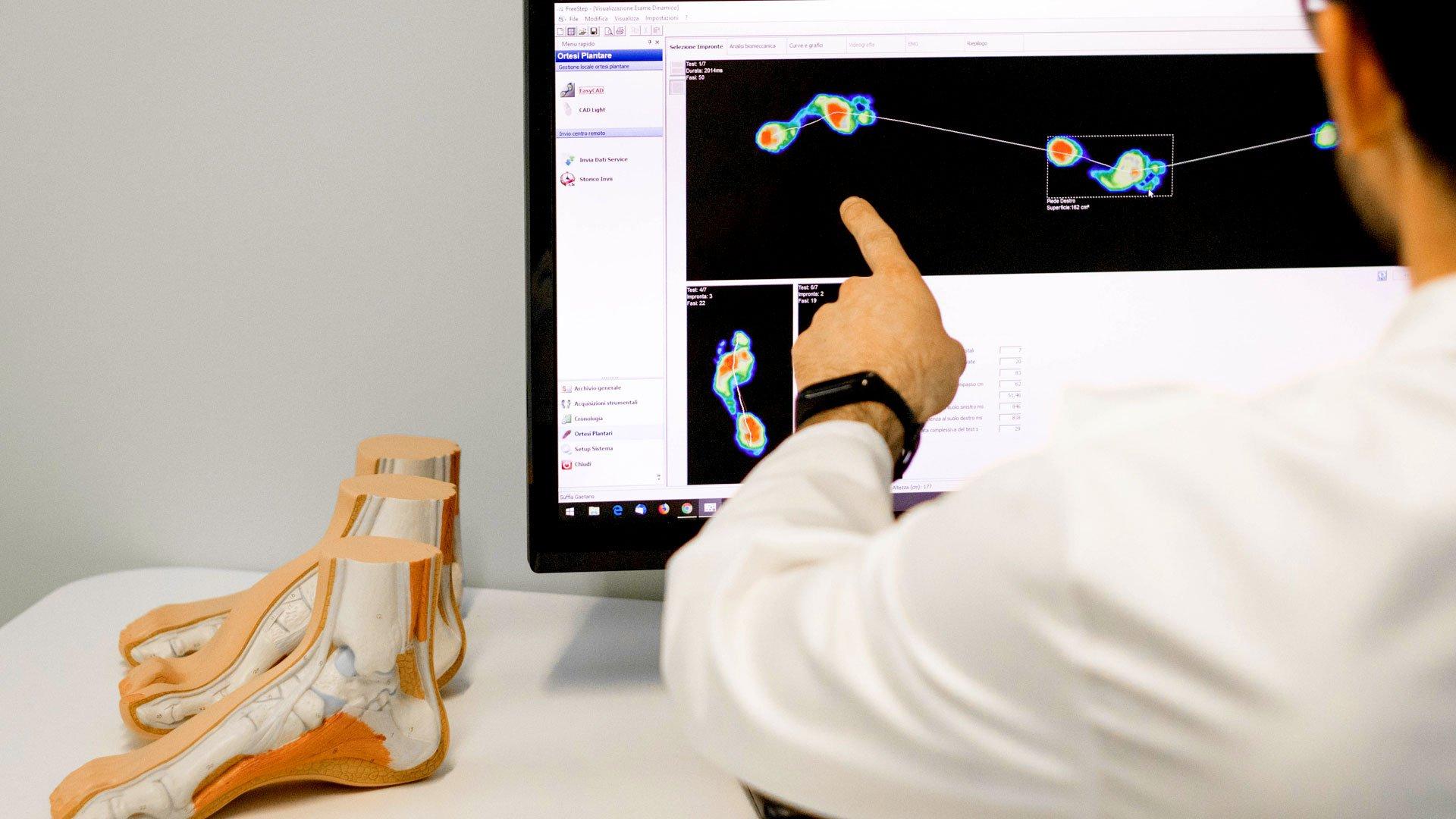 Ortopedia Marchetti effettua in studio a Sarnico Bergamo l'esame del passo con pedana baropodometrica